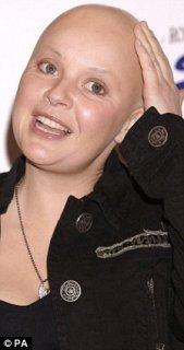 Gail Bald.jpg