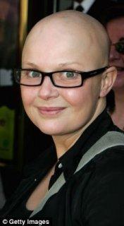Gail Bald 2.jpg
